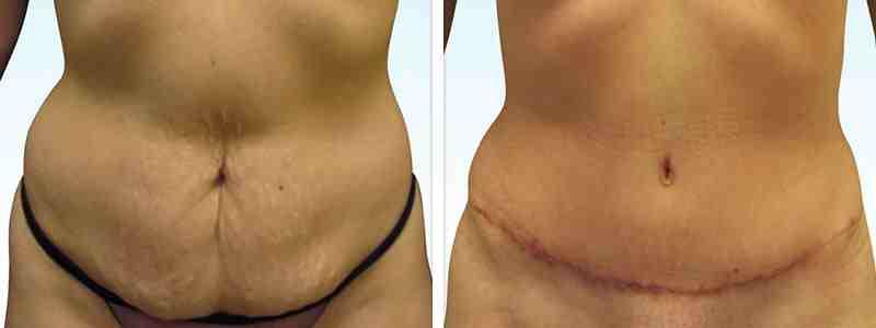 rhinoplasty dubai